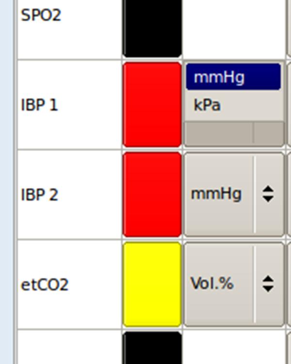 核磁监护仪-IBP和气体监测