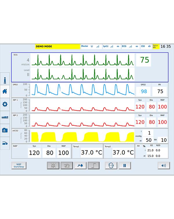 核磁监护仪-主界面 MIPM